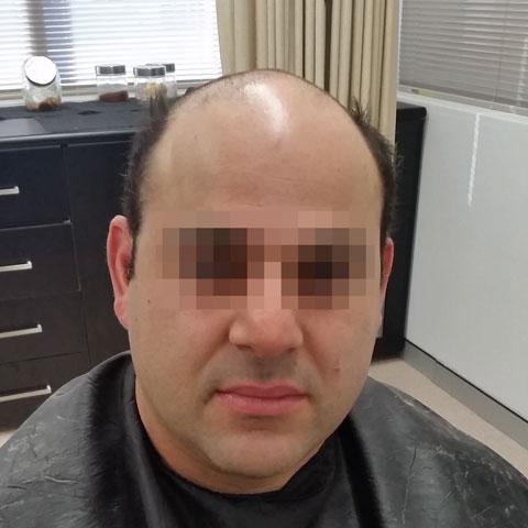 hair restoration sydney