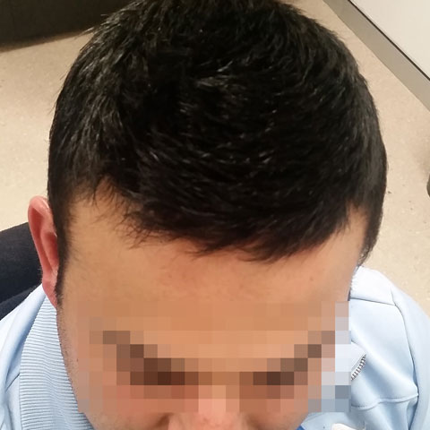 hair restoration near me