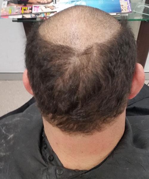 sydney hair transplant clinic